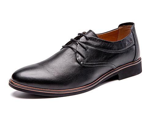 为什么皮鞋穿久了会出现白斑